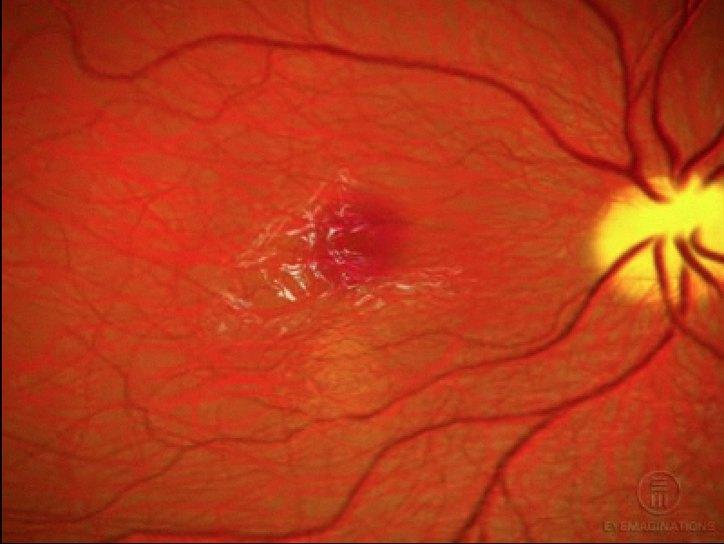 Эпиретинальная мембрана, причины, методы лечения. Все о глазных ...