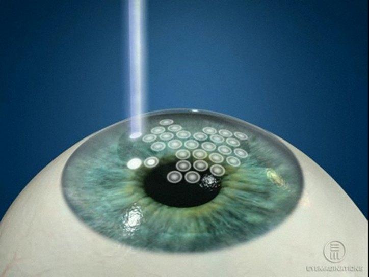 Почему нельзя ходить в баню после лазерной коррекции зрения