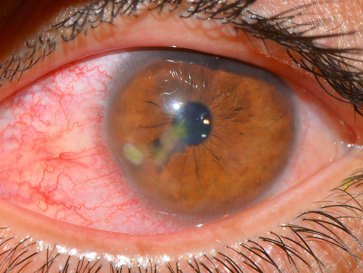 покраснение и помутнение глаза при сифилисе