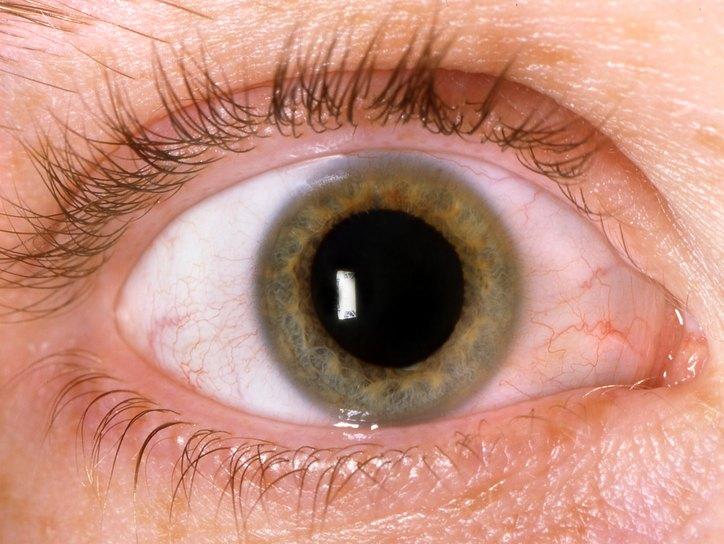 Как увеличить зрачок? Глазные капли для расширения зрачка длительного действия
