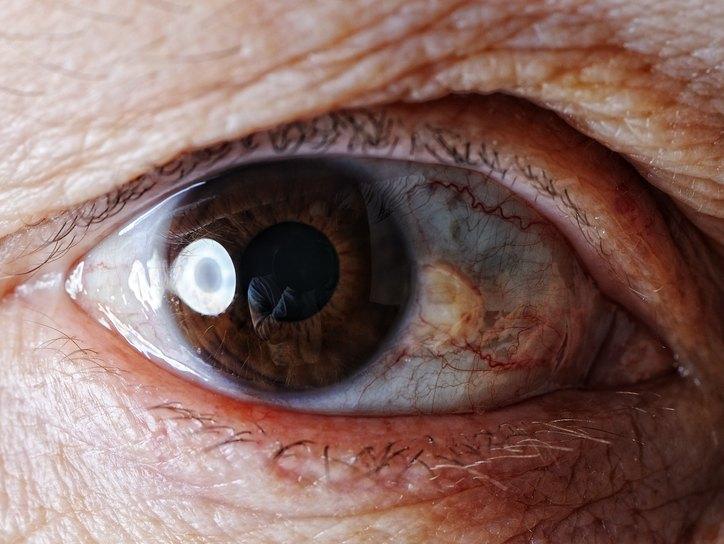 Пингвекула, описание, причины, симптомы, лечение. Глазные болезни ...