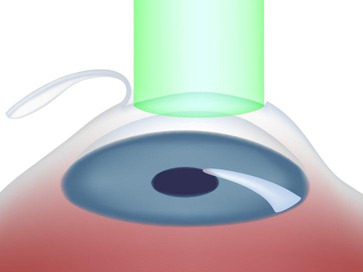 Какие ощущения после операции по коррекции зрения