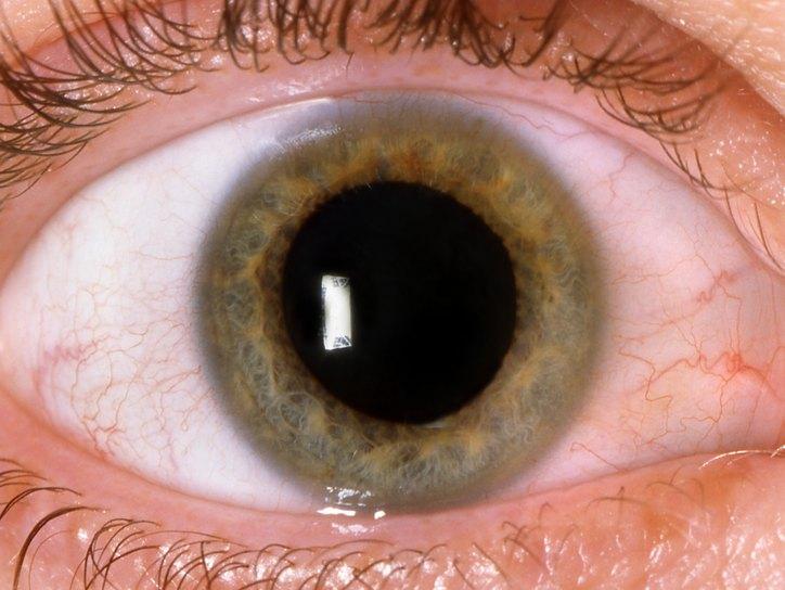 Мидриаз (Mydriasis расширение зрачка), причины, симптомы, лечение ...