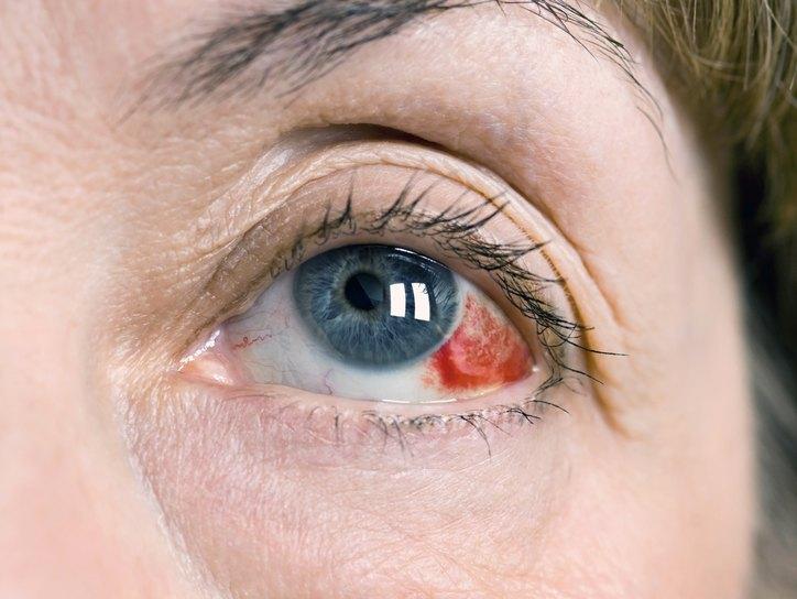 Субконъюнктивальное кровоизлияние, причины, лечение. Все о глазных ...
