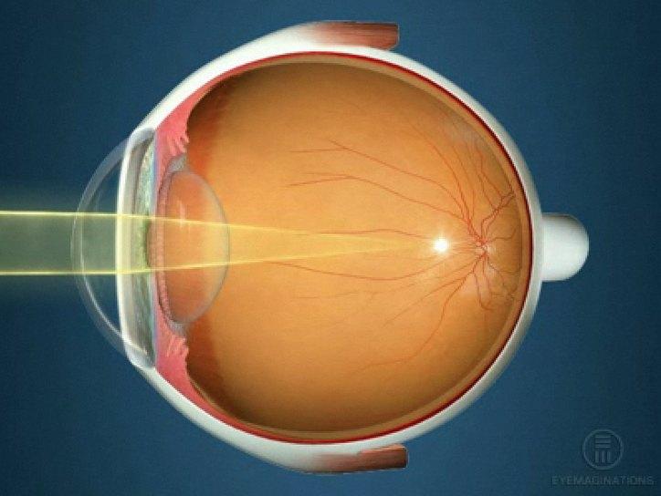 Глазной нерв зрение