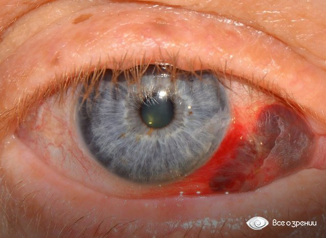 Как лечить лопнувшие сосуды в глазах в домашних условиях