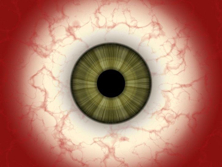 Синдром красного глаза - Все про глаза