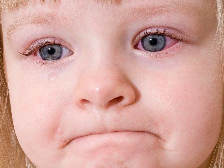 Глазное обследование у детей, осмотр глаза у ребенка.