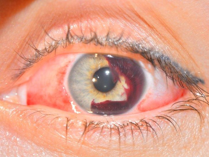 Гифема, причины, симптомы, лечение. Глазные болезни на портале ...