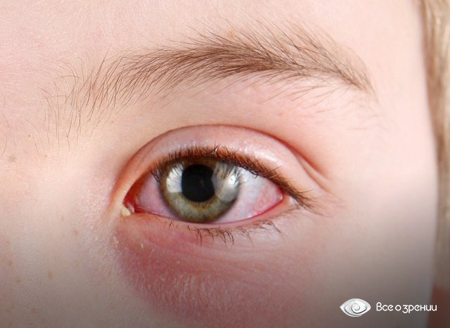 Гноятся глаза у ребенка, причины, лечение, профилактика.