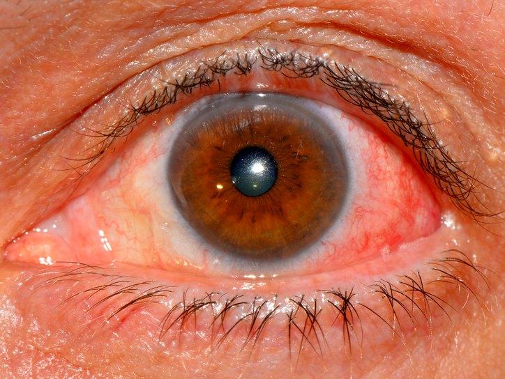 острый эписклерит глаза это