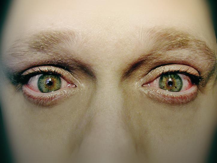 Жжение в глазах, симптомы, причины, лечение.