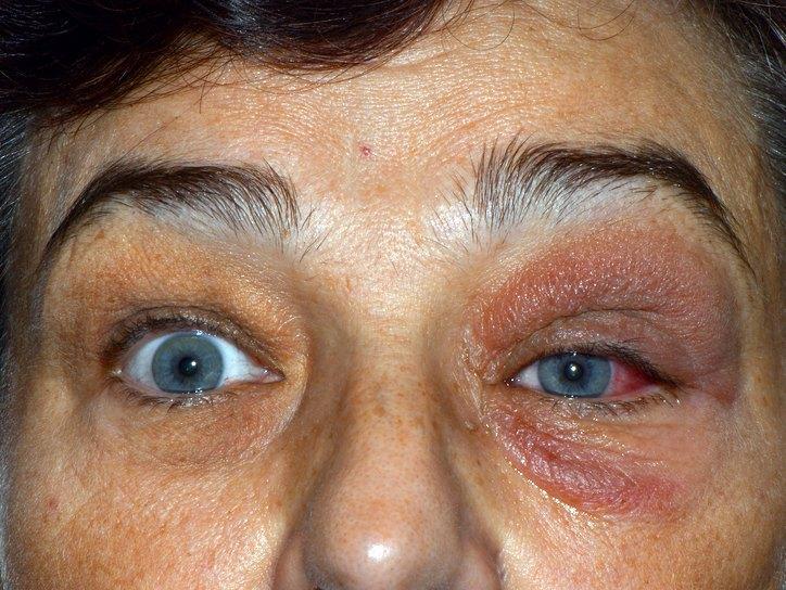 Воспаление слезной железы симптомы лечение с фото
