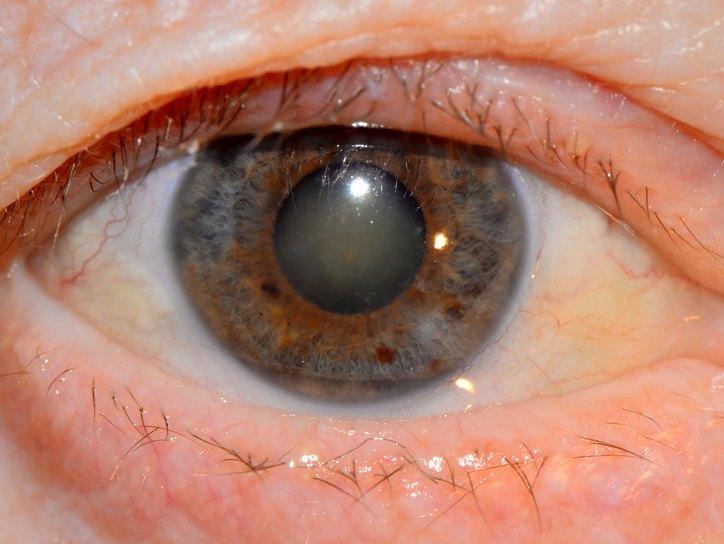 Вторичная катаракта симптомы, причины, лечение и профилактика ...