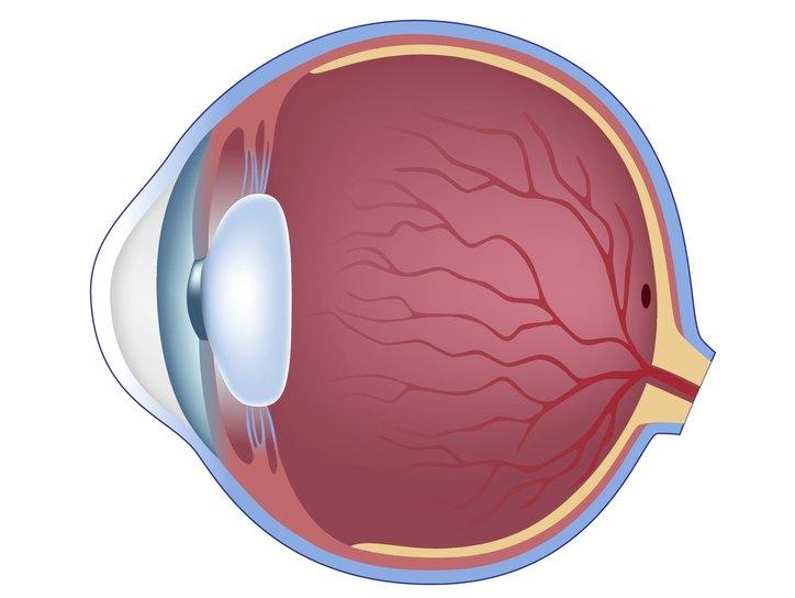 Задняя отслойка стекловидного тела (ЗОСТ) причины, лечение, симптомы.