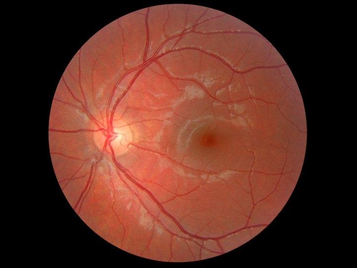 Центральная серозная хориоретинопатия (ЦСХ), симптомы, причины ...