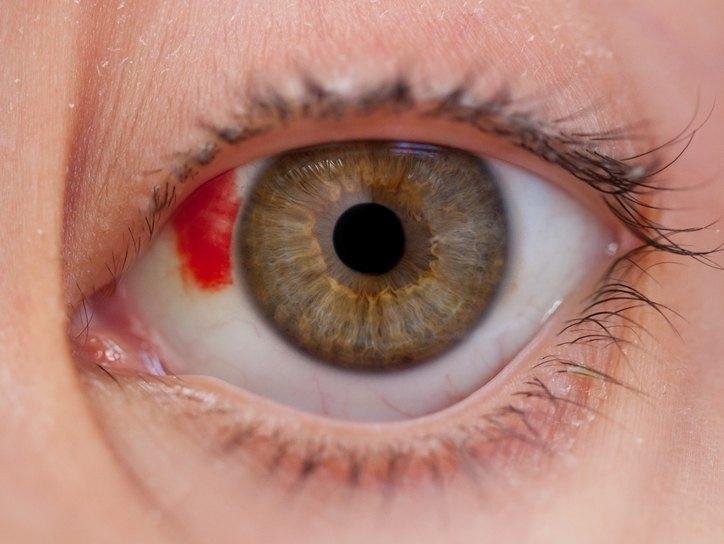 Повреждение глаза, поверхностные повреждения глаз.