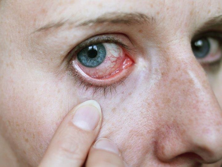 Болит уголок глаза ближе к виску