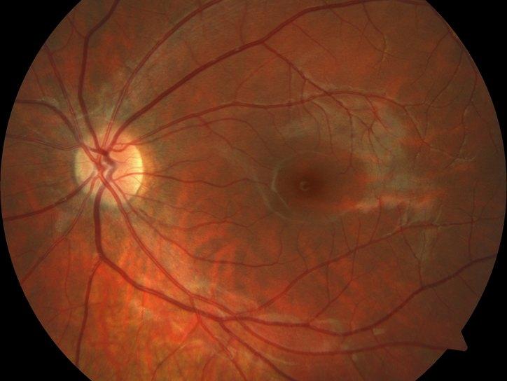 цсх глаза зрение не восстанавливается