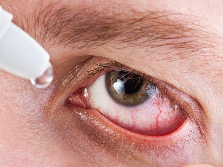 капли для глаз от аллергии список
