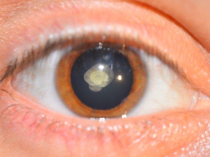 Врожденная катаракта - признаки, симптомы, лечение ...