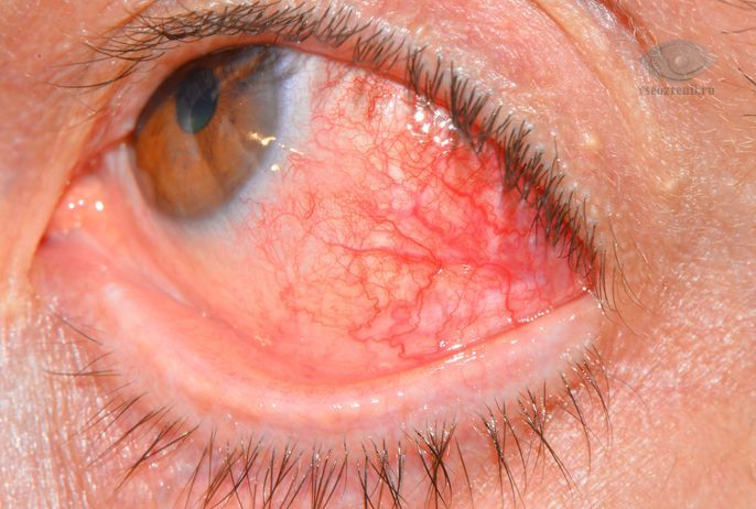 Склерит, причины, симптомы склерита, лечение. Все о глазных болезнях.