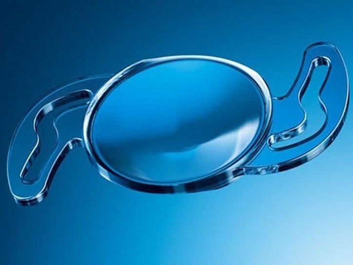 Искусственный хрусталик при катаракте