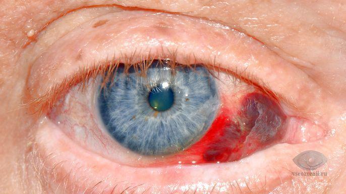 кровоизлияние в склеру глаза причины лечение
