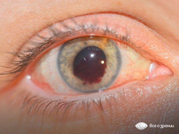 кровоизлияние в переднюю камеру глаза