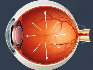 Отказали в операции по коррекции зрения