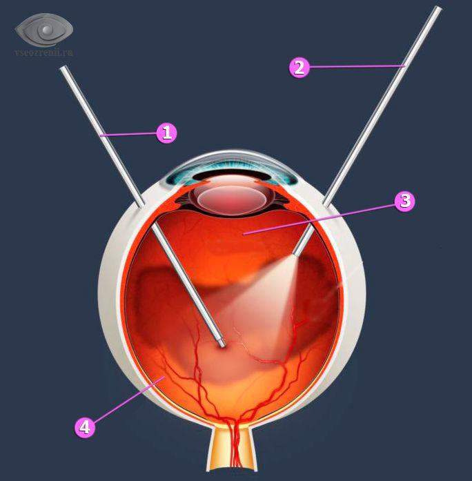 Схематическое изображение витрэктомии