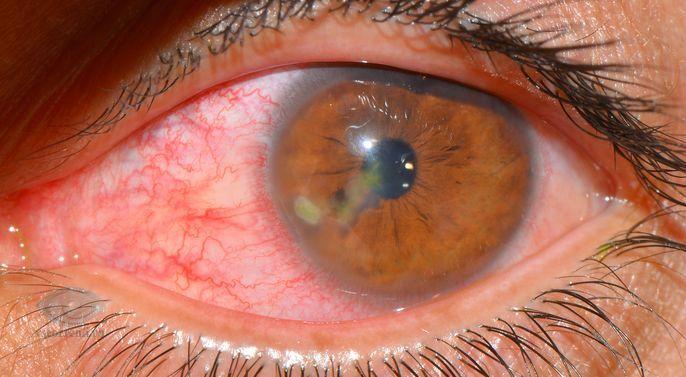 Кератит, симптомы, причины, лечение кератита. Все о глазных болезнях.