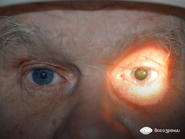 анизокория слева
