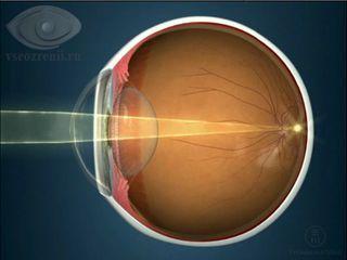Лазерная коррекция зрения в уфе казакбаева