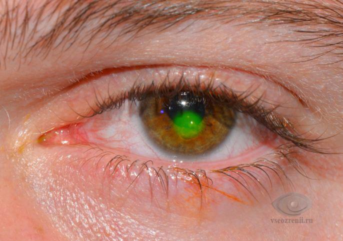Боль в глазах, симптомы, причины, лечение