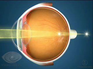 Восстановление зрение после конъюнктивита