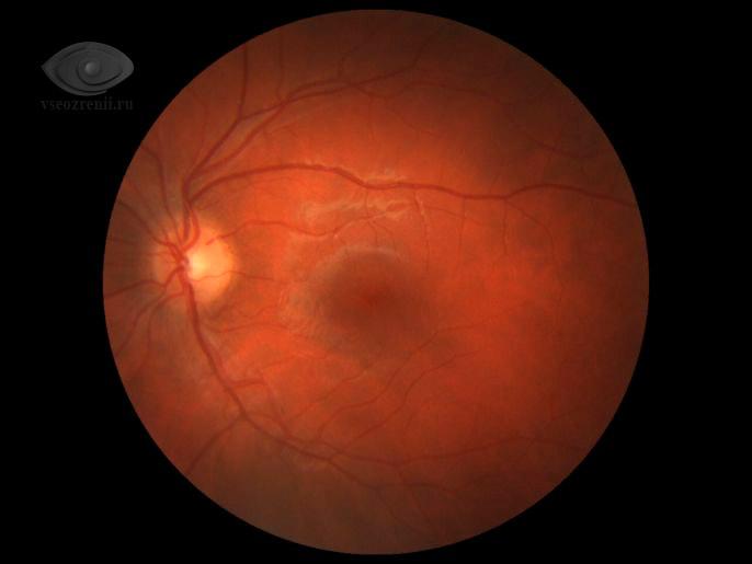 растяжение сетчатки глаза при близорукости