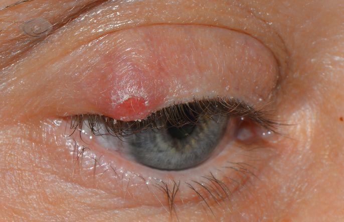 Халязион причины, симптомы, лечение. Все про глазные болезни на ...