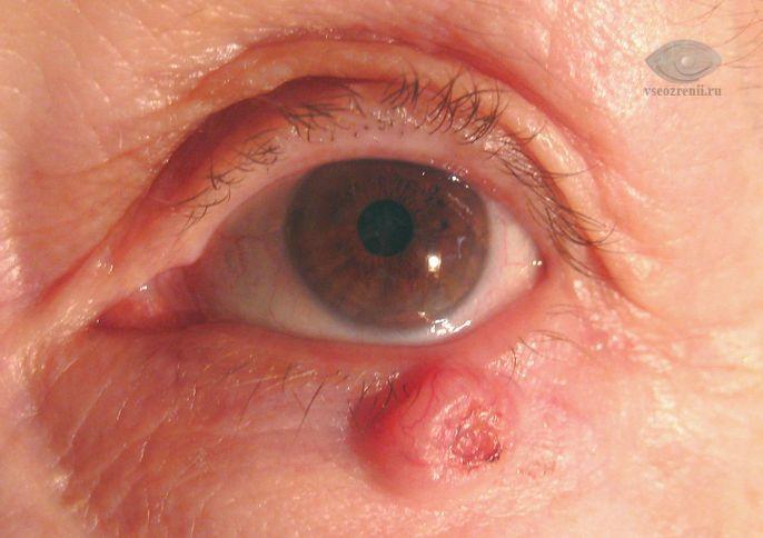 Базалиома - симптомы, причины, лечение базалиомы. Все о глазных ...