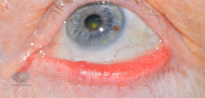 Блефарит признаки симптомы, профилактика и лечение блефарита ...