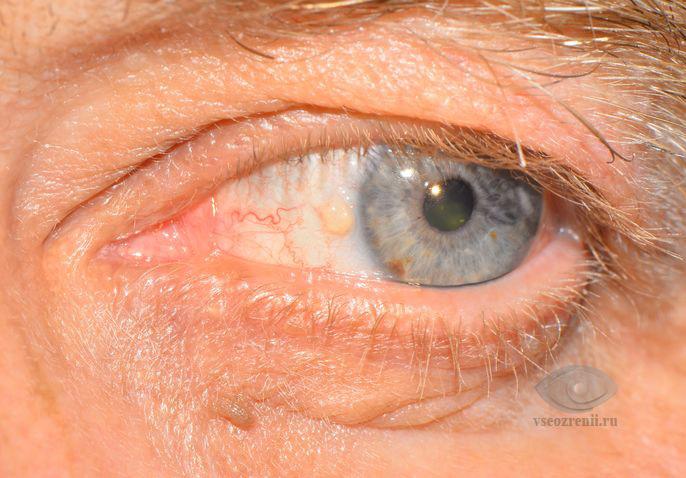 Гемолитическая анемия  лечение симптомы причины