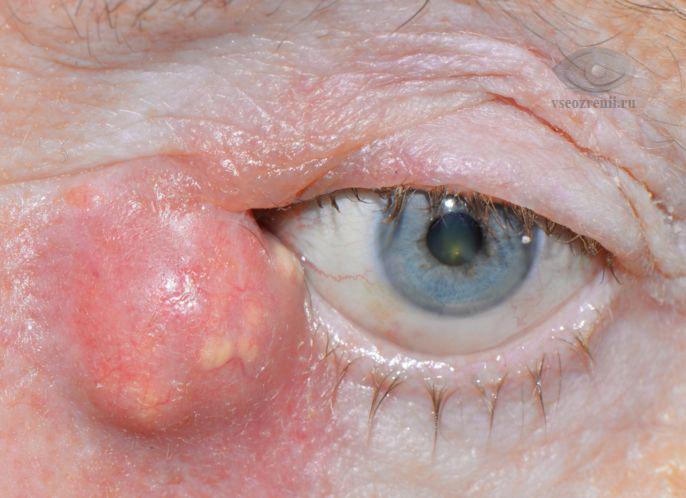 дакриоцистит - глазная болезнь