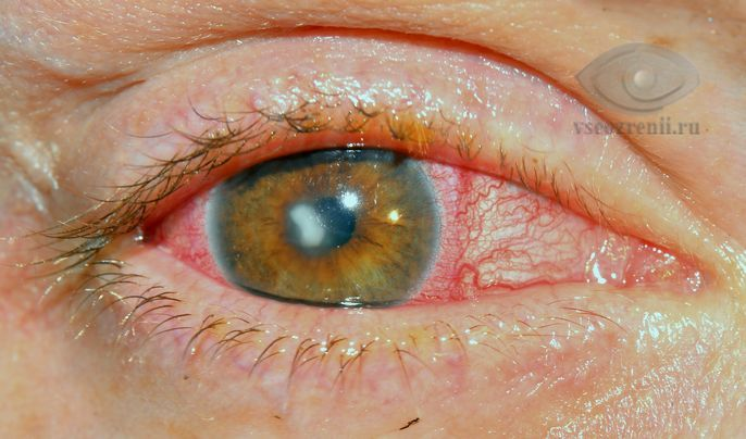 Синдром красного глаза, симптомы, профилактика, лечение.