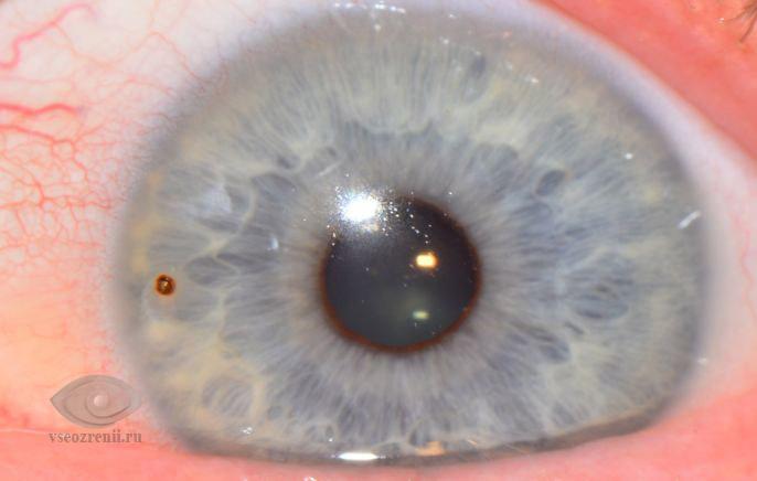 inorodnoe telo rogovicy - Ткнула ногтем в глаз