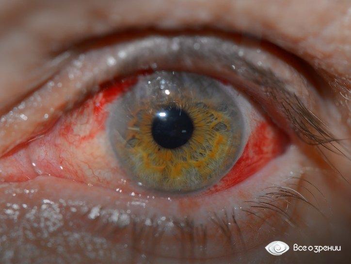 Кровь в глазу что делать