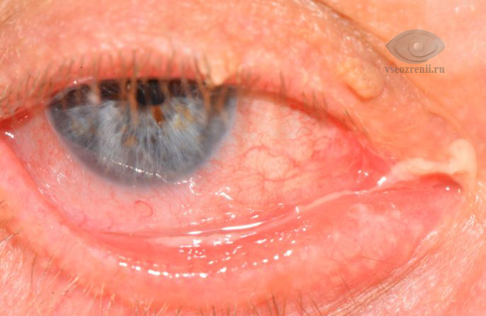 Каналикулит - боль в уголке глаза