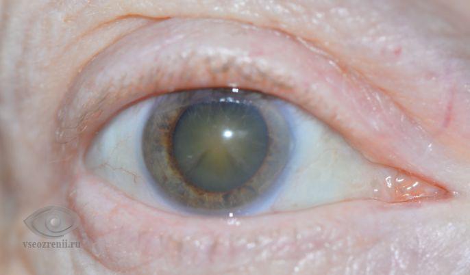 Катаракта глаз и кортикостероиды метандиенон-цены