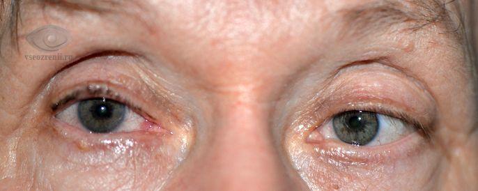 Очки для зрения с меняющимися диоптриями