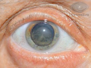 Сколько дней дают больничный после операции катаракты