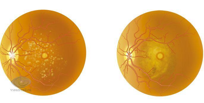 Возрастное ухудшение зрения лечение